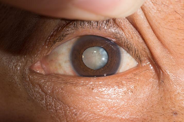 Closeup of a Cataract