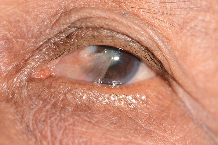 Closeup of Pterygium