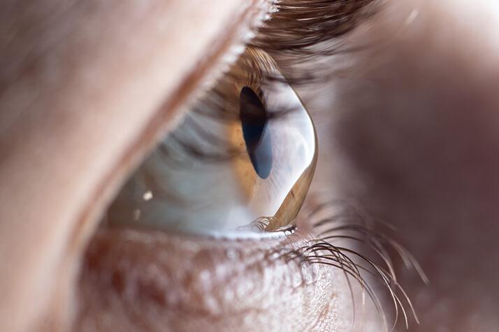 Closeup of an Eye With Karatoconus